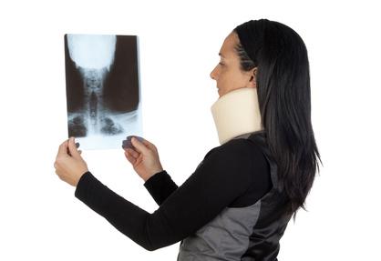 筋や関節組織の損傷はレントゲンで発見しにくいです